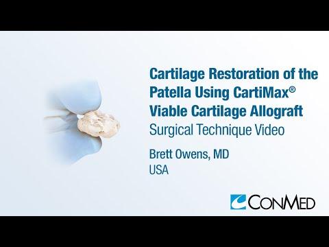 Recenzii de carboxiterapie articulară