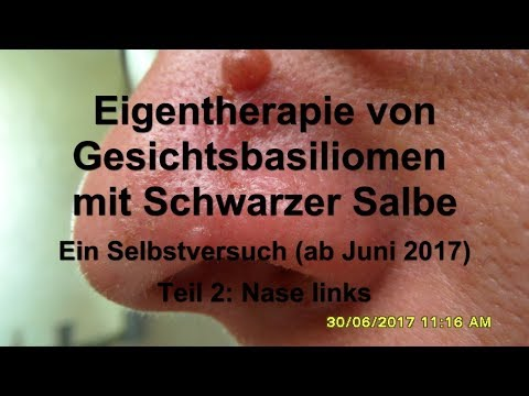 Atopitscheski die Hautentzündung podmyschetschnyj