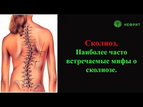 Упражнения для 2 стадии сколиоза