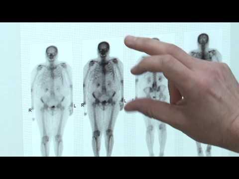 Prostata refrigerata quali sintomi