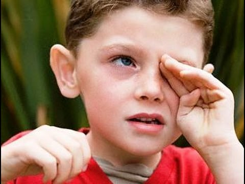 Реферат глаз и зрение человека
