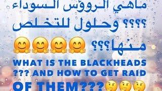 ماهي الرؤوس السوداء ؟؟ و الحلول للتخلص منها؟؟ How To Get Rid Of The Black Heads??