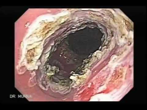Applicazione di pomo dAdamo varicosity