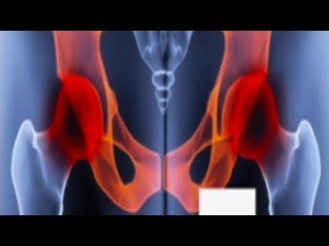 Wir behandeln Prostata Podmore