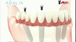 Implantes All on 4 Clínica Dental Adalia