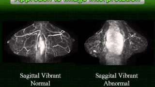 MRI Advance - Breast MRI Lecture Series - P8 B APPROACH