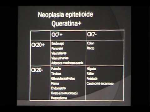 Recibir Cialis prostatitis