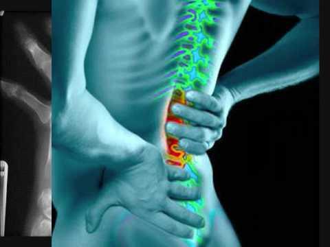 Tratamentul artrozei în Azerbaidjan