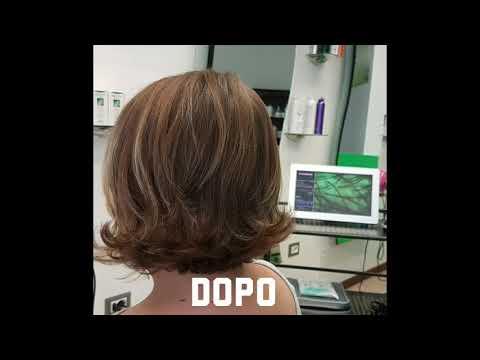 Operazione laser di emorroidi il prezzo in Ufa
