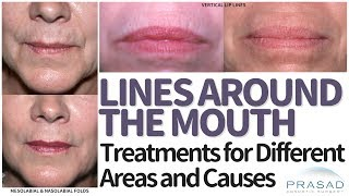 How to Treat Lines, Folds, and Wrinkles Around the Mouth and Lips