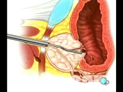 Prostate treatment cues