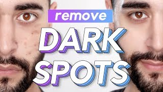 Remove Dark Spots / Acne Scars / Hyperpigmentation From The Face ✖ James Welsh