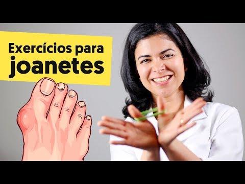 Imagem ilustrativa do vídeo: EXERCÍCIOS PARA JOANETE (e COMO NUNCA TER!)
