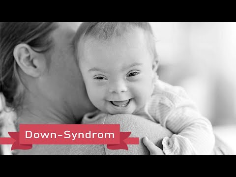 Watch video Down-Syndrom Sonnescheinkinder