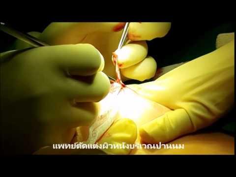 การกำจัดของแมงมุมหลอดเลือดดำที่ขาใน Voronezh