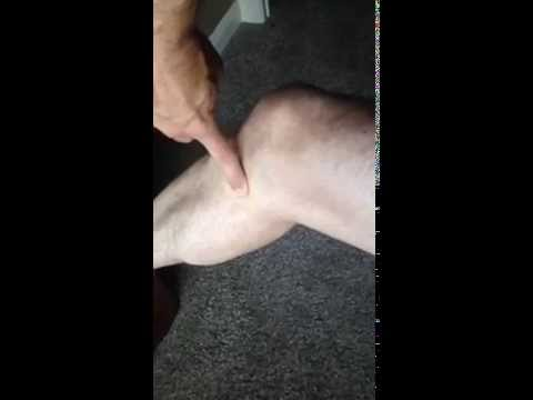 Video Knee Bursitis Diagnosis and Treatment | Auburn Medical Group