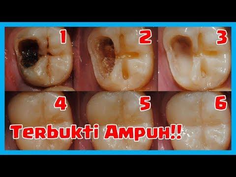 Sakit Gigi Hilang Kelaparan Terapi Tipis