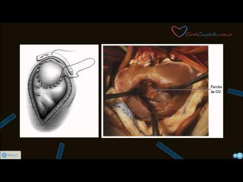 Lipertensione in gravidanza effetti