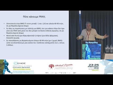 Κοσμίδης Χρ. - Πώς διαγιγνώσκεται η οστεοπόρωση και πώς ανιχνεύεται ο κίνδυνος κατάγματος;