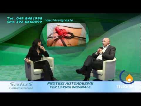 Trattamento di nuclei di ernia di ernia posteriori pulposi