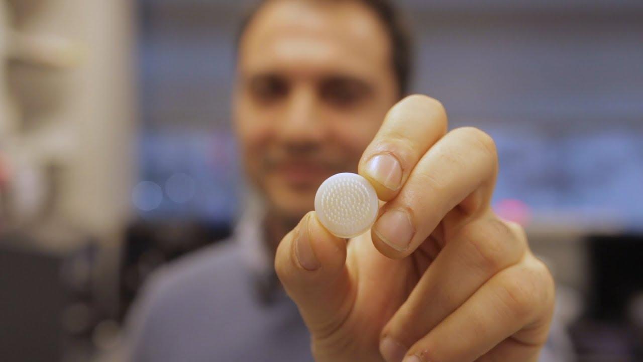Дерматологи научились выращивать волосяные луковицы при помощи 3D-принтера
