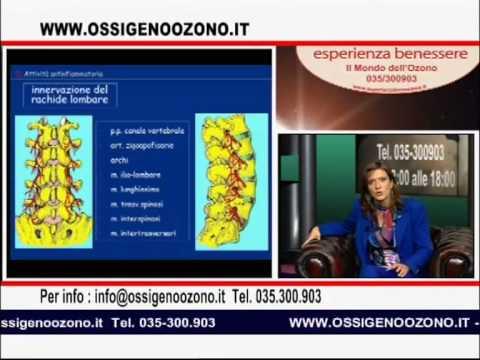 Tra nervature osteocondrosi
