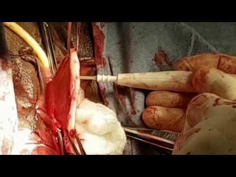 Erhöhten weißen Blutzellen der Prostata Geheimnisse