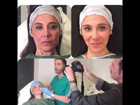 Maschere per la pelle di faccia secca infiammata