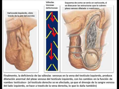 Ultrasunete varicoză pelvic