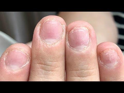 Der Alaun für die Behandlung gribka der Nägel