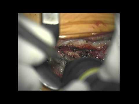 Hemilaminektomia z użyciem Bone Scalpel
