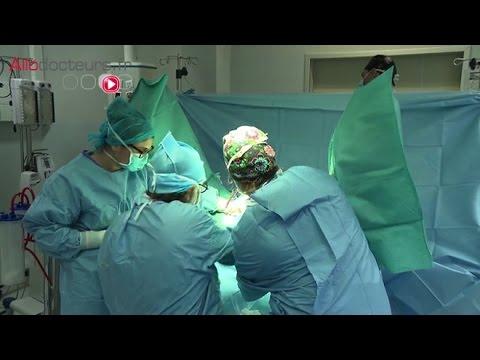 La varicosité des veines sur le pied chez les hommes