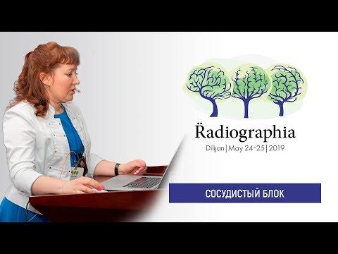 Анна Кудрявцева. Подпеченочная форма портального блока