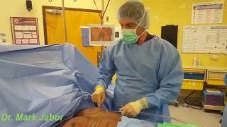 Dr. Mark Jabor - Gynecomastia in El Paso, TX