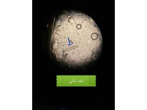 Quest-ce que cest les oeufs lhelminthe et les protozoaires