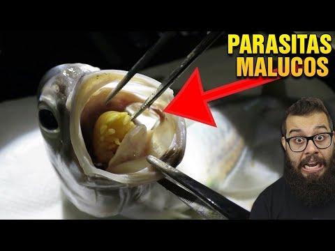 Belek pinwormokkal