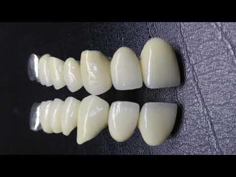 КАКИЕ ЗУБНЫЕ КОРОНКИ ЛУЧШЕ ВЫБРАТЬ ?Разновидности зубных протезов. Разница между зубными коронками .