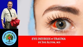 Eye Injuries and Trauma: First Aid and Treatments