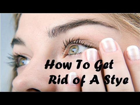 Video How To Get Rid of a Stye