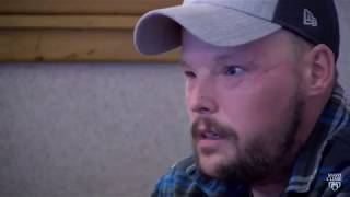 2 years after face transplant, Andy Sandness' smile shows his progress
