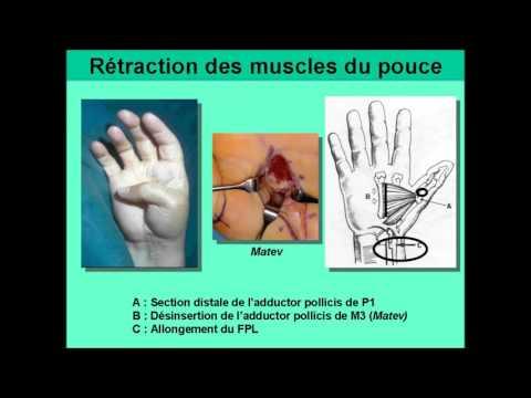 Les douleurs à la phlébite de la jambe