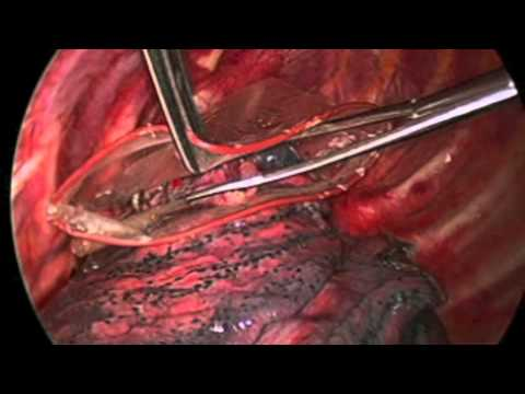 Minimally Invasive VATS Bullectomy And Pleurectomy For Primary Pneumothorax
