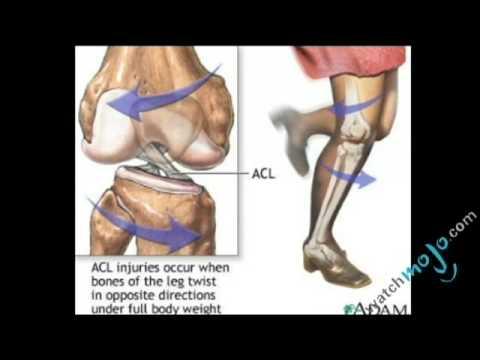 Health Myths: Knee Injuries