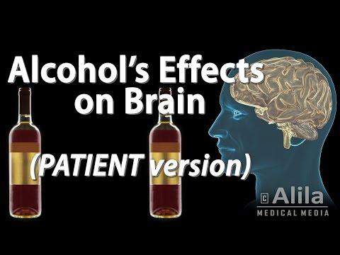 Działanie alkoholu na mózg