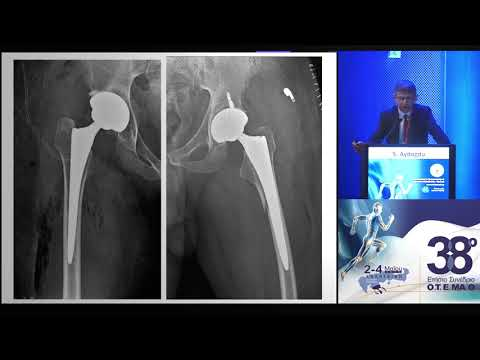 Aydoğdu S. - Total hip replacement in hematological disorders