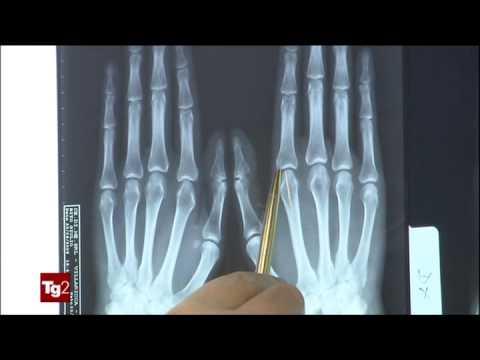Casa esercizio dopo artroplastica del ginocchio
