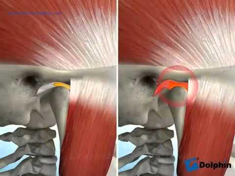 Wie den Schmerz im Rücken jutube abzunehmen