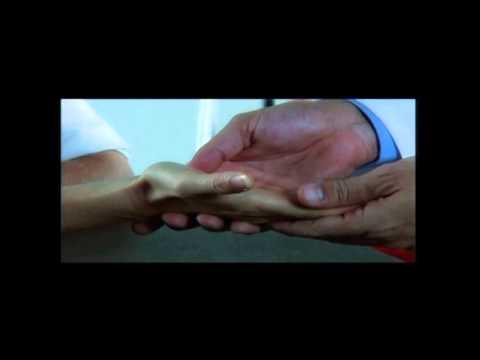 Wrist carpal tunnel syndrome
