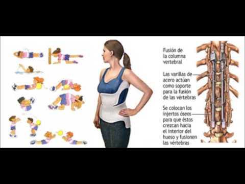 Lo ALMAG de osteocondrosis