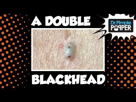 Double Blackhead!